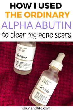 I spent the last 6 weeks clearing my old acne scars that I have had since forever. Here's how The Ordinary Skincare Alpha Arbutin cleared my hyperpigmentation. #theordinaryskincare #acnescars #acnetreatment #skincareproductsthatwork Skincare For Oily Skin, Drugstore Skincare, Oily Skin Care, Skincare Routine, The Ordinary Alpha Arbutin Review, Beauty Tips, Beauty Secrets, Beauty Products, Beauty Hacks