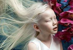 8-Year-Old Siberian Albino Girl Surprises Modeling Agencies With Unique Beauty, Gets Flooded With Offers