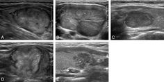 Representative sonographic images of the 5 diagnostic categories for solid thyroid nodules. A, Benign: longitudinal US image, in a 62-year-old man, of a right thyroid nodule (2.2 × 2.7 × 3.1 cm) with an ovoid shape, isoechogenicity, and smooth margin (nodular hyperplasia by pathology). B, Probably benign: transverse US image, in a 31-year-old woman, of a large left thyroid nodule (3.2 × 4.9 × 7.3 cm) with an ovoid shape, inhomogeneous isoechogenicity, and macrolobulated margin (trabecular…