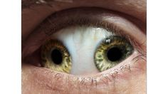 No, it's not Photoshopped -- Pupula Duplex is a real condition where a person develops 2 irises, corneas and retinas in 1 eye.