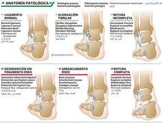Tipos de Esguinces de tobillo #fisioterapia