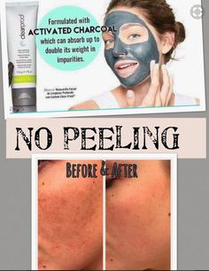I swear by this Charcoal Mask. No peeling or pain when you take it off. I won't stop buying this mask. Made with REAL charcoal. Order from me @ www.marykay.com/jczmiel  today!!