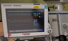 Hospital Heart Rate Monitor Machine HHR04 | HealthSanaz ...