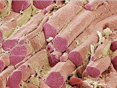 Al microscopio SEMx300, fibras musculares esqueléticas (tejido conectivo endomisio en color amarillo y las fibras en color rojo). Imagen de Steve Gschmeissner