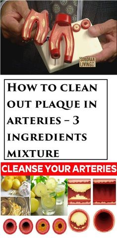 Arteries Remedies How to clean out plaque in arteries – 3 ingredients mixture Calendula Benefits, Matcha Benefits, Health Benefits, Natural Health Remedies, Natural Cures, Natural Healing, Clean Arteries, Tomato Nutrition, Health Advice