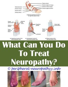 Ulnar neuropathy mri.Natural products for foot neuropathy.Ssdi for neuropathy - Peripheral Neuropathy. 6566874699 #PeripheralNeuropathy