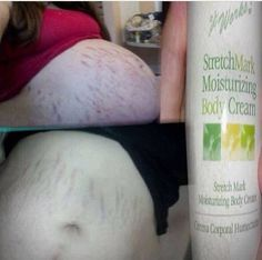 I have a stretch mark cream that will help fade those mommy marks and keep your skin beautiful... Inbox or text today wnrwraps@gmail.com 443-585-7691 Stretch Mark Cream, Stretch Marks, It Works Wraps, Defining Gel, Green Tea Extract, Your Skin, Moisturizer, Personal Care, Lotions