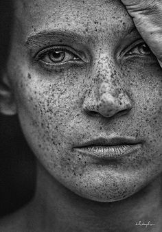 Count the freckles...