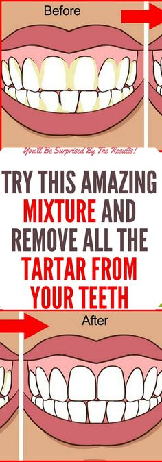 Try This Amazing Mixture And Remove All the Tartar From Your Teeth! Oral health is very important because it actually determines your overall health. One of the most important parts of the procedur… Health Heal, Oral Health, Dental Health, Health Care, Teeth Health, Health Facts, Dental Care, Healthy Teeth, Healthy Tips