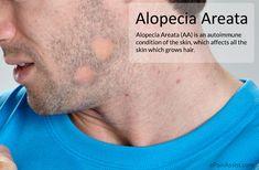 Alopecia Areata  Read: http://www.epainassist.com/skin/alopecia-areata-aa