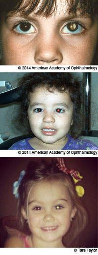 Examples of white reflex, asymmetrical red reflex, and yellow reflex as seen in photographs of children. White, yellow and missing reflex can be signs of serious, potentially blinding, eye problems. Asymmetrical red reflex can be a sign of misalignment of eyes, which is also very serious and can result in reduction of a child's vision.