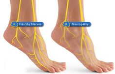 #Neuropathy is widely known as peripheral neuropathy. The main causes of neuropathy are repetitive injury, #metabolicproblems, #physicaltrauma, and infection.