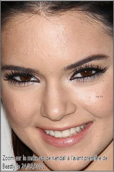 Kendall Jenner With Acne Events : kendall Celebrities Before And After, Online Images, Plastic Surgery, Kendall Jenner, Real Life, Hair Beauty, Face, Moon, Events
