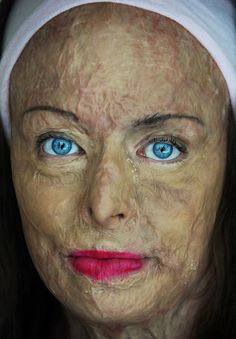 """I want to cry and smile and lose my breath all at the same time: """"Portrait Of A Burn Survivor"""""""