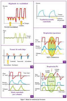 La chuleta de osler cardiologa ekg taquicardias orientativo acta mdica peruana ventilacin mecnica urtaz Images