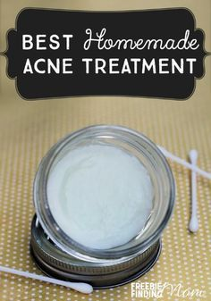 Best Homemade Acne Treatment - Do you suffer from acne? This natural remedy for acne not only zaps zits quickly, but it also soothes and moisturizes the skin. Next time you suffer from a breakout, skip those drugstore products loaded with chemicals and un Homemade Acne Treatment, Acne Spot Treatment Diy, Scar Treatment, Beauty Hacks For Teens, Piel Natural, Natural Acne Remedies, Herbal Remedies, Homemade Acne Remedies, At Home Spa