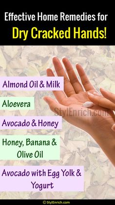 Scuffling with dry cracked hands? Here comes some of the best and effective home remedies for dry cracked hands to get out of this issue. Skin Care Home Remedies, Dry Skin Remedies, Natural Home Remedies, Dry Hands Remedy, Dry Cracked Hands, Caffeine And Alcohol, Ginger And Honey, Ginger Benefits, Hand Care
