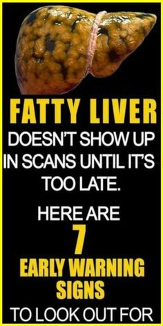 Here ar seven #Liver disease signs to observe out for and the way to treat it reception victimization free home remedies that employment. a typical liver disorder found in most of the people is liver #disease, this can be once the liver contains up to 100 percent a lot of fat than usual. #Health