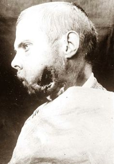 Wounded World War I Soldier