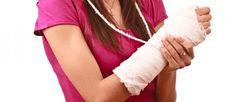 Alimentos para recuperarse de fracturas de huesos