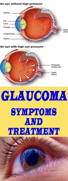 Glaucoma is a major cause of blindness in the world. It can gradually impair your eyesight without some noticeable signs until advanced stages.