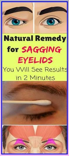 Natural Remedy For Sagging Eyelids – You Will See Results In 2 Minutes #beauty #eyelids #skin #naturalremedy #remedies