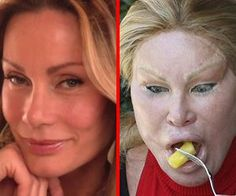 21 Gorgeous Stars Who Became Monsters