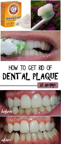How to Remove Dental Plaque