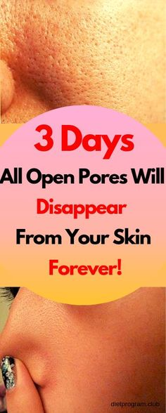 3 Days and All Open Pores Will Disappear From Your Skin Forever By Using These Homemade Solutions - NZ Holistic Health Home Beauty Tips, Beauty Hacks, Beauty Care, Diy Beauty, Beauty Skin, Beauty Women, Natural Skin Care, Natural Health, Natural Oils
