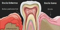 La #gingivitis si no es tratada puede afectar el periodonto, lo que a la larga podría ocasionar pérdida de uno o más órganos dentarios. No olvides asistir a consulta dental dos veces al año.