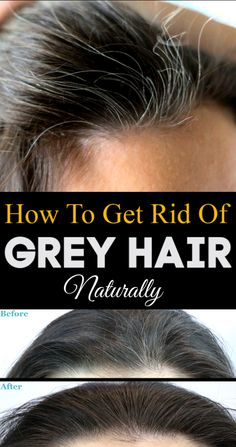 grey hair remedies Your hair can become grey because of several reasons. Here are the top 15 natural home remedies for grey hair treatment with images which are definitely help to you. Grey Hair Remedies, Curly Hair Styles, Natural Hair Styles, Natural Gel Nails, Types Of Manicures, Natural Haircare, Hair Care Routine, Natural Curls, Diy Beauty