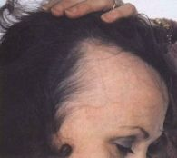 For those of you who are seeing some troubling hair loss symptoms, check out this great article today!