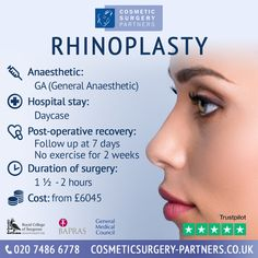 Rhinoplasty at Cosmetic Surgery Partners London Please call 020 7486 6778 for more information #Rhinoplasty #Rhinoplastybeforeandafter #cosmeticsurgerypartners #facialplasticsurgery #lifechanging #londonplasticsurgeon #nasaltipplasty #nosejob #nosejobbeforeandafter #nosesurgeryinlondon #plasticsurgeon #rhinoplasty #rhinoplastyadvice #rhinoplastybeforeandafter #rhinoplastydiary #rhinoplastyexpert #rhinoplastyexperts #rhinoplastygallery #rhinoplastyjournal #rhinoplastyjourney Rhinoplasty Surgery, Nose Surgery, Facial Cosmetic Surgery, Rhinoplasty Before And After, Cosmetics, London, London England