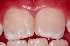 Look familiar? This is dental fluorosis - it's what happens to your teeth when you have too much fluoride in your system. It can cause pitting and chipping. Yet another reason why NOT to use toothpaste containing toxic flouride on you or your child's teeth. It is already in our drinking water whether we like it or not, so using toothpaste with flouride is just adding to the toxic load.