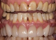 Fixing your teeth with ceramic crowns can not only help you achieve better denta. - Jared Ford, DDS - Before and After Photos - Ceremic Lente Dental, Tooth Crown, Dentist In, Fix You, Dental Health, Crowns, Teeth, Ford, Ceramics