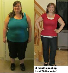 8 Months post-op Lapband...76 lbs gone! 64 more lbs to go :-)