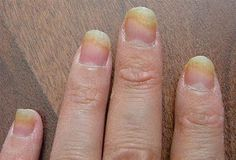 finger fungus treatment