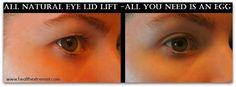 Natural Remedy For Drooping Eyelids, Sagging Eyelids or kHooded Eyes