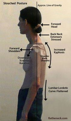 Overcoming Chronic Neck Pain: Postural Causes and A Unique Exercise Fix