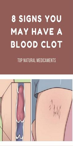 8 SIGNS YOU MAY HAVE A BLOOD CLOT