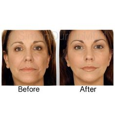 Treatment: Non-Surgical Facelift  Purpose:  Reverse aging signs  How it works: Using long lasting dermal fillers injections and Coolaser  Results: Immediate ✏ Note: Individual results may vary  Phone: (310) 746-5233  Email: info@epione.com  Website:  www.epionebh.com  Location:  Epione Beverly Hills  Technique:  Micro-droplet injection  Anesthesia: Topical numbing cream ⏰Time it takes: About an hour Recovery: none Lasts: Months to years depending on product used Cau...
