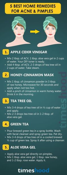 Trying to get rid of acne at home? Use these effective home remedies for acne an., Beauty, Trying to get rid of acne at home? Use these effective home remedies for acne and pimples. Best ways to get rid of pimples at home. Back Acne Treatment, Natural Acne Treatment, Brown Spots On Face, Dark Spots, How To Get Rid Of Pimples, Acne And Pimples, Acne Skin, Body Acne, Natural Remedies