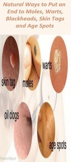 Natural Ways to Put an End to Moles, Warts, Blackheads, Skin Tags and Age Spots