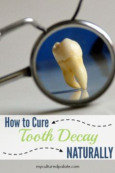 Cure tooth decay through diet - Did you know that it is possible to cure tooth decay? Teeth can actually remineralize!