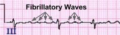 Normal Heart Rate, Atrial Fibrillation, In A Heartbeat