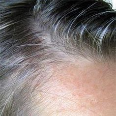 Premature Grey Hair, Shampoo For Gray Hair, Grace Beauty, Hair Remedies For Growth, Going Gray, Stay Young, Beauty Recipe, Grow Hair, Hair Loss