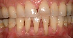Эти проверенные рецепты дают 100% результат! Оголение шейки и корня зуба не следует оставлять без лечения. У многих людей есть проблемы с тем, что оголилась шейка или корень зуба. Проявляйте заботу о себе, применяйте натуральные средства и БУДЕТЕ ЗДОРОВЫ! Это вызывает дискомфорт и сопровождается оченьнеприятными болезненными ощущениями иприводит к накоплению бактерий, которые разрушают зубы и …