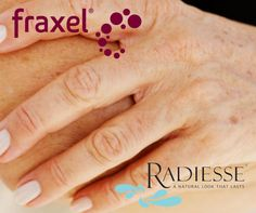 A new combination of Fraxel Dual and Radiesse has become popular for literally turning back 'the hands of time' with a hand treatment.