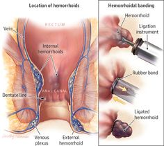 Hemorrhoids. JAMA. 2014;312(24):2698. doi:10.1001/jama.2014.281.