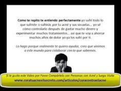Cura Contra El Acne SECRETO 1 - http://solucionparaelacne.org/blog/cura-contra-el-acne-secreto-1/